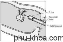 Những nguy cơ mắc bệnh Polyp tử cung