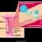HPV gây ung thư cổ tử cung