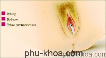 viêm âm đạo