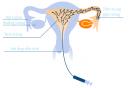 Minh họa quá trình bơm tinh trùng
